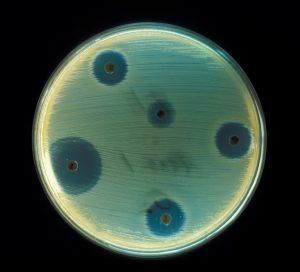 staphylococcus_aureus_ab_test