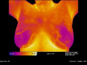 Stop the Mammography Madness Part II: Let's Talk Thermography