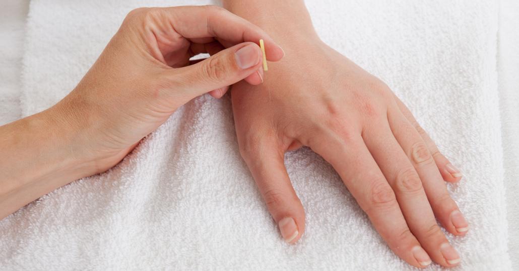 Acupuncture for Rheumatoid Arthritis